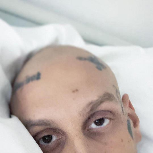 Rapper Separ bojuje s rakovinou.