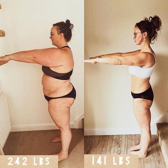 Chanelle se podařilo díky zmenšení žaludku zhubnout 45 kilogramů.