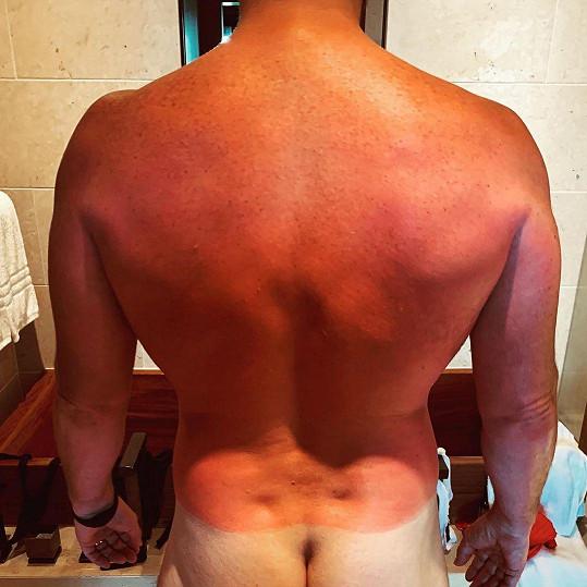 Tohle jsou záda Chrise Pratta, která dostala pořádně zabrat.