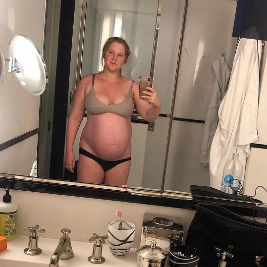 Amy Schumer si postěžovala, že stále trpí nevolnostmi.