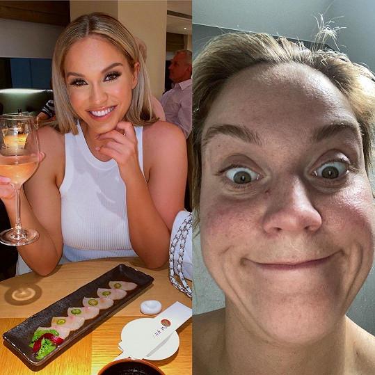 Fotka vlevo vyvolává ve sledujících pocit zklamání a vpravo zase přílišnou snahu být normální.