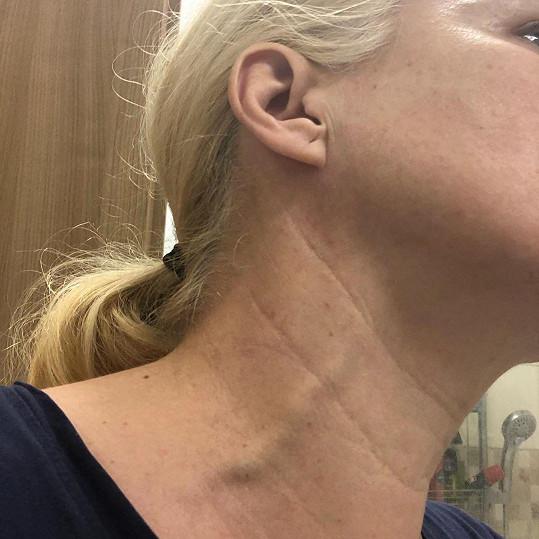 Aneta Parišková zvrřejnila příznak své nemoci.