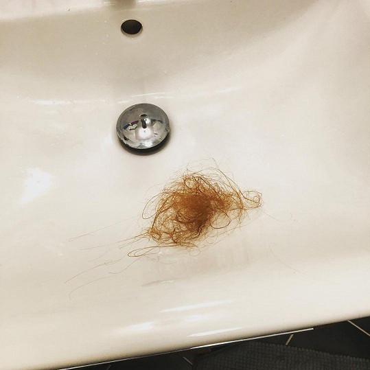 Takový chomáč vlasů herečka ztratila během chvíle.