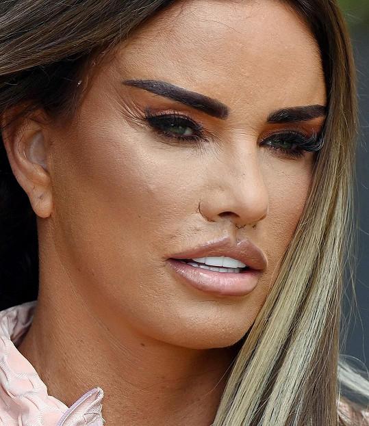 Je pravda, že ze zákroku se stále ještě zotavuje a na snímcích měla výrazný makeup.