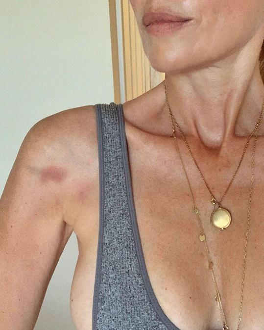 Daniela ukázala fotku svého bolavého ramene, které léčí fyzioterapií.