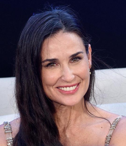 V televizi už měla implantáty a děkovala bohu za moderní stomatologii.