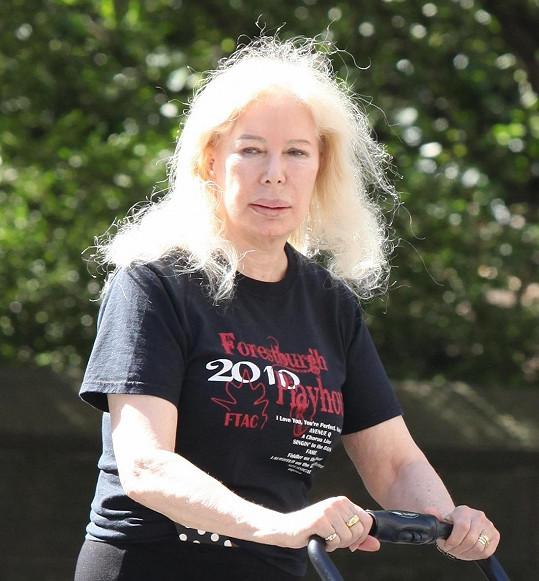 Swit zůstala věrná dlouhým blond vlasům a za pomoci injekcí si chce uchovat i plné rty.