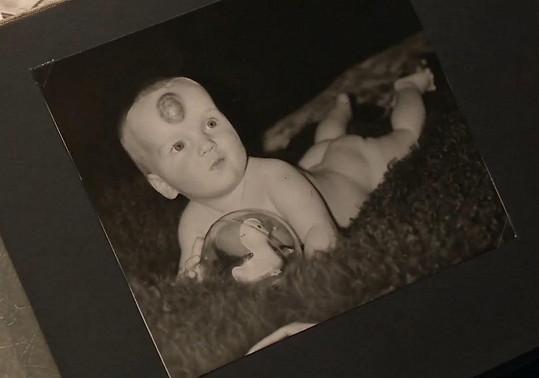 Hemangiom jí začal růst už po narození.