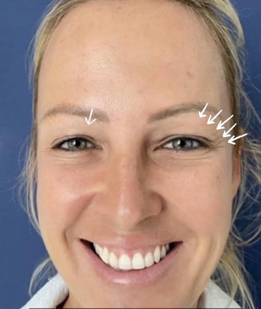 Zuza před operací víček
