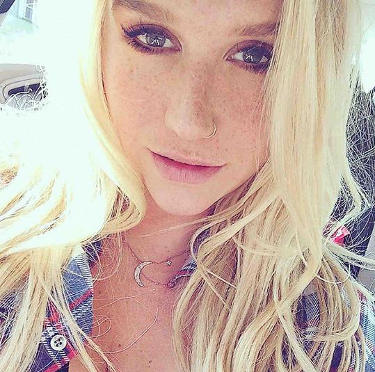 Takhle Kesha vypadala dříve.