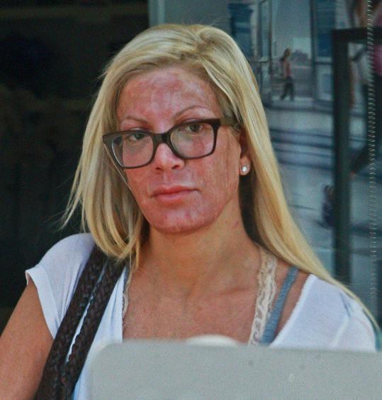Tori Spelling poté, co podstoupila chemický peeling.