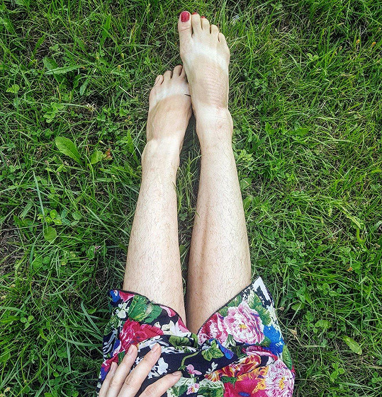 Na Instagramu hrdě vystavuje své chlupaté nohy a chce být inspirací i dalším ženám.