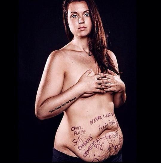 Den předtím, než jí lékaři odstranili přebytečnou kůži...