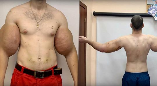 Za sebou má první operaci, při níž mu lékaři vyjmuli 1,36 kg tkáně a tři lity tekutiny.