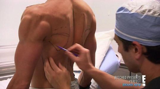 Lékař vpraví implantáty do oblasti lopatek.