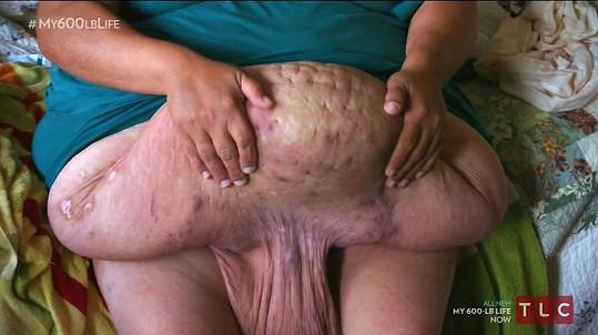 Toto Susan zbylo po radikálním úbytku na váze...