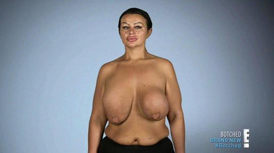 Krystina má za sebou pět plastik prsou.