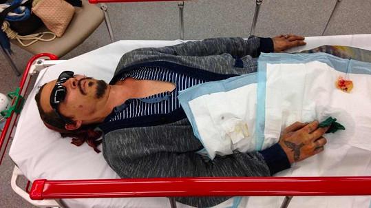 Která končila pro Johnnyho popálenou tváří od cigarety a zraněným prstem.