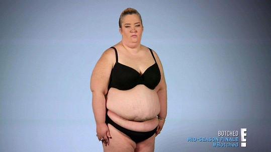 V minulosti byla velmi obézní.