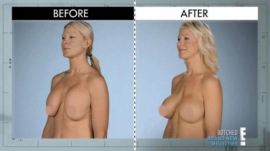 Srovnání před operací a po ní