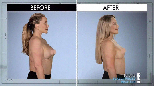 Další implantáty jí lékaři nedoporučili. Opravili alespoň její bradavky.