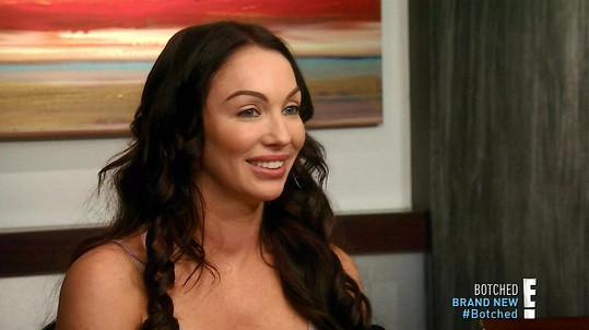 Jana Stoner se nechala vylepšit v televizním pořadu Botched.