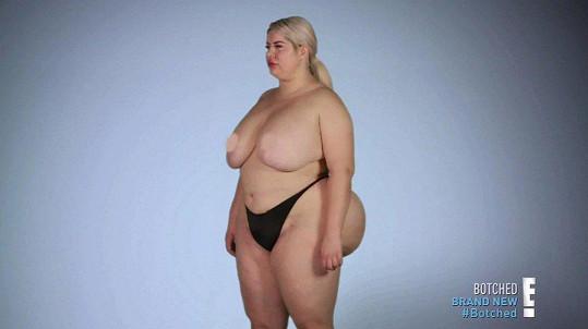 V Botched si nechala zvětšit prsa.