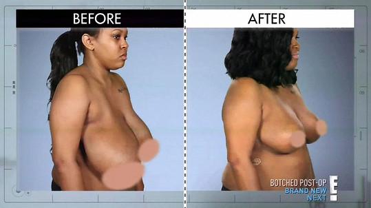 Po operaci má konečně obě prsa stejná.