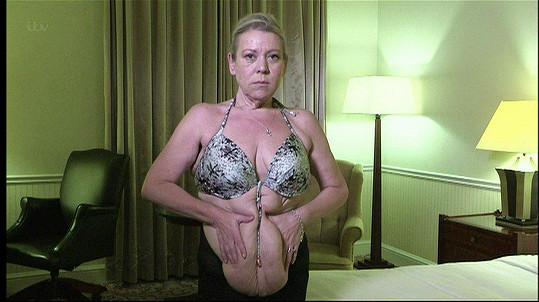 Po výrazném úbytku váhy jí zůstala povislá kůže.