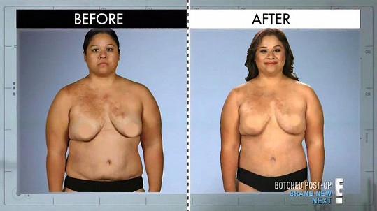 Rosa před a po plastické operaci