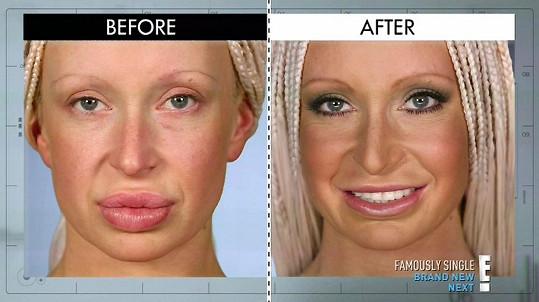 Ashley před a po operaci