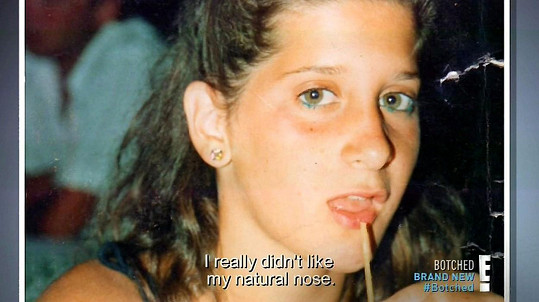V dospívání začala mít ze svého vzhledu komplexy.