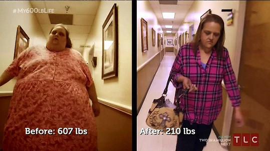 Susan Former se po odstranění kůže dostala na téměř třetinovou váhu.