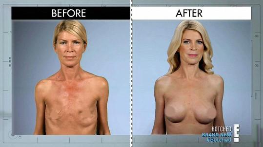 Po zpackané operaci, během níž se jí do těla dostala infekce, jí musela být obě ňadra odstraněna. Lékaři jí nyní udělali nová.
