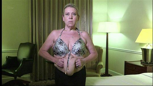 Po redukci váhy jí zůstala ošklivě povislá kůže.