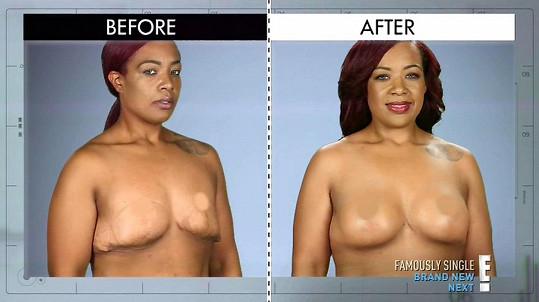 Laura před a po operaci u lékařů pořadu Botched