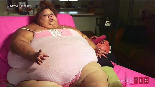 Lupe Samano vypráví, jak těžké je žít s morbidní obezitou.