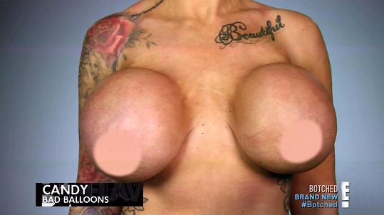 Mezi její umělá ňadra by se vešel třetí implantát.