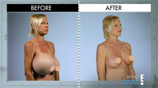 Dee Stein měla obrovská prsa, jedno jí prasko.