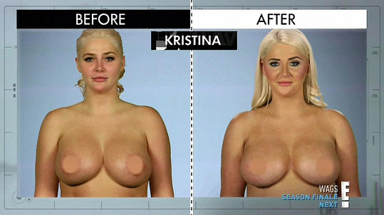 Kristina Shannon po úpravě nosu a ňader