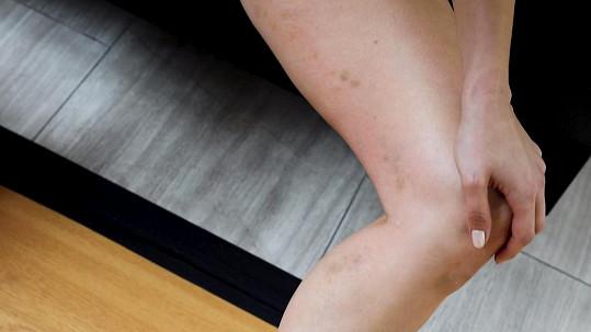 Nohy měla samou modřinu.