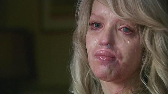 Prodělala přes 200 operací, její tvář však nikdy nebude stejná.