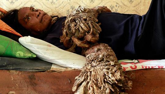 Nejslavnější stromový muž Dede Koswara. Zemřel letos ve 45 letech.