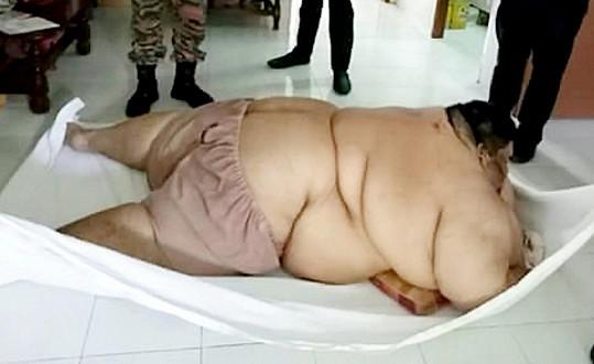 Morbidně obézní Malajsijec se projedl k úplné imobilitě...