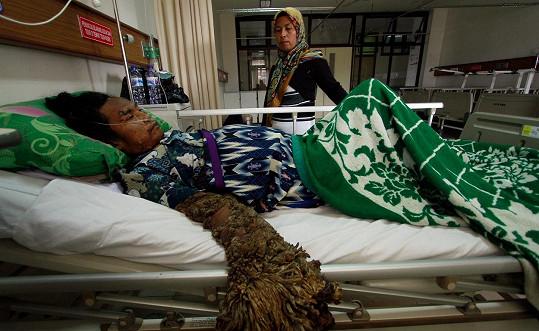 Následkům své nemoci podlehl v nemocnici.