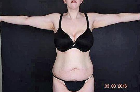 Mladou Američanku po zhubnutí trápila povislá kůže.