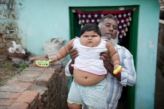 Aliya z Indie je jedním z nejtěžších dětí svého věku na světě.