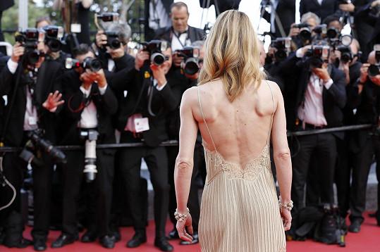 Vyrýsované svalstvo má i na zádech.