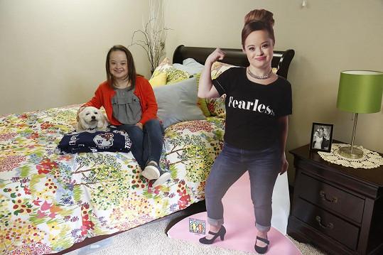 Katie je úžasná holka trpící Downovým syndromem.