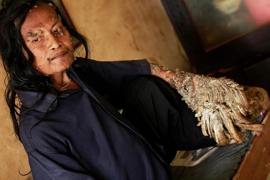 Stromový muž Dede Koswara